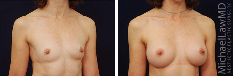 breastaug-49o