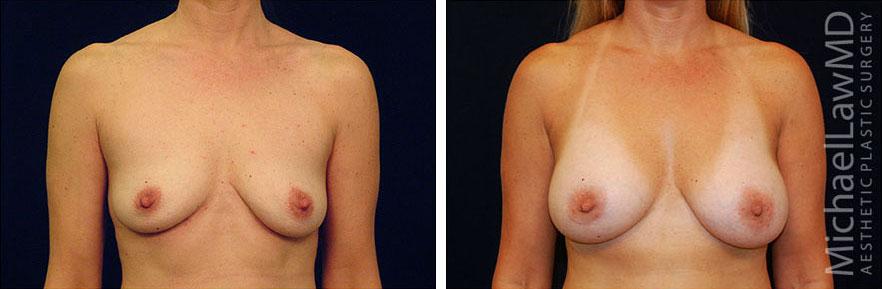 breastaug-50f