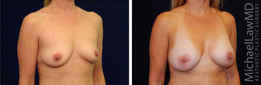 breastaug-50o