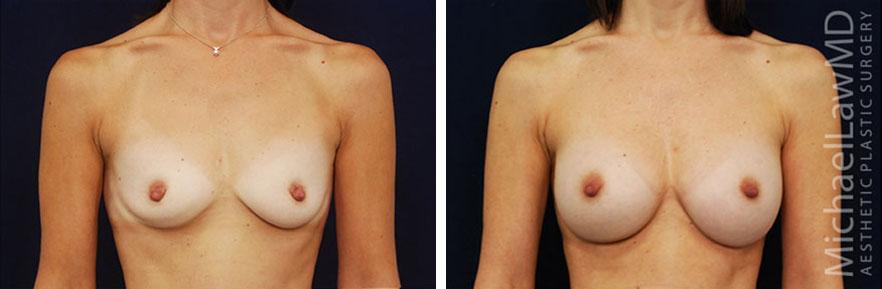 breastaug-52f