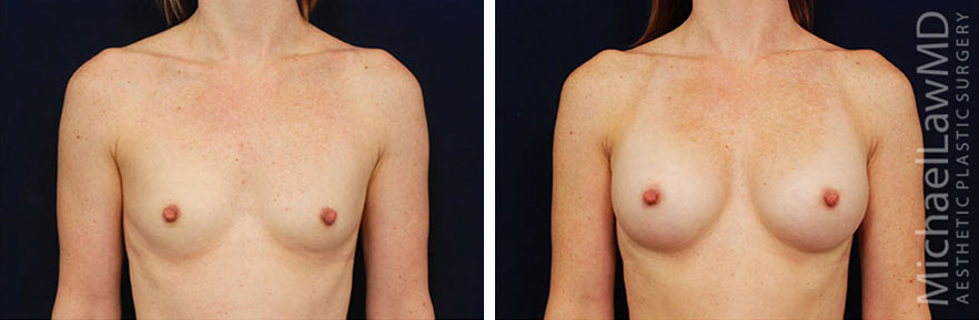 breastaug-54f