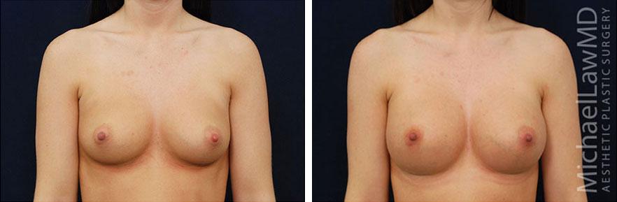 breastaug-61f