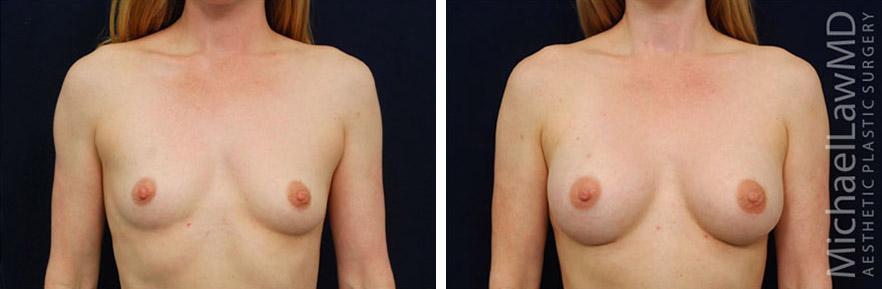 breastaug-65f