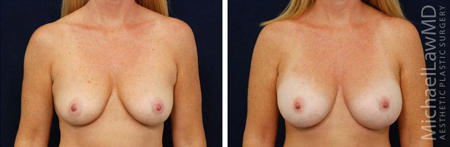 breastaug-66f