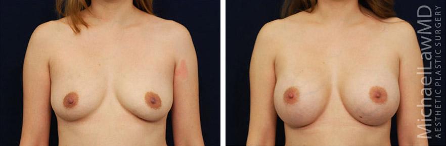 breastaug-67f