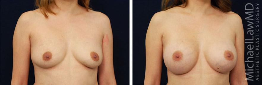 breastaug-67o