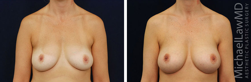 breastaug-69f