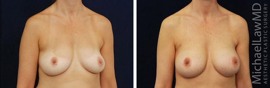 breastaug-69o