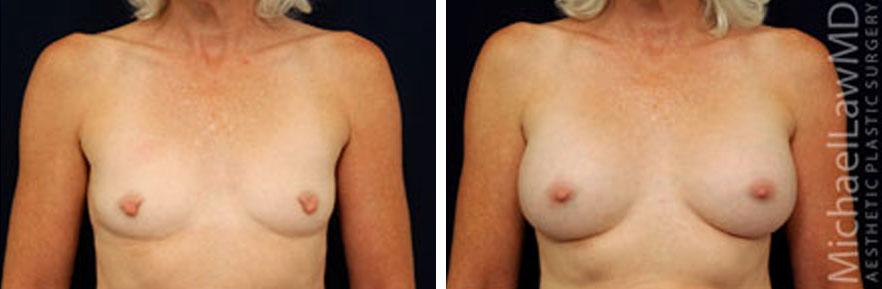 breastaug-6f
