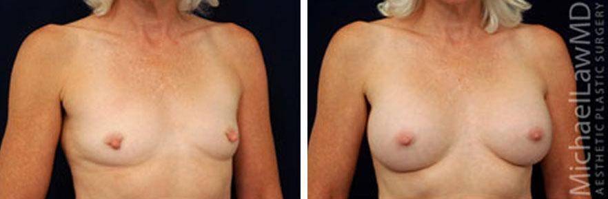 breastaug-6o