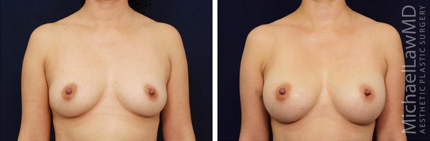 breastaug-72f