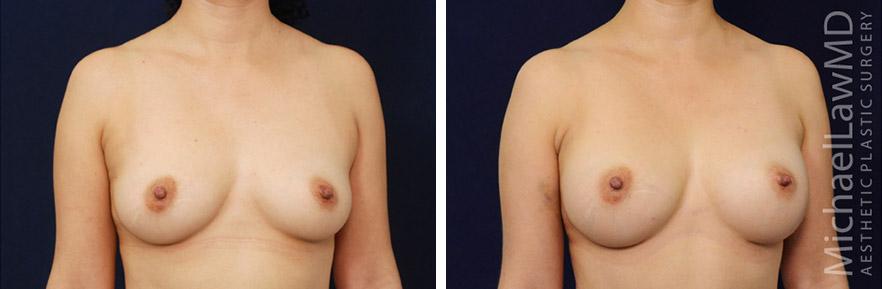 breastaug-72o