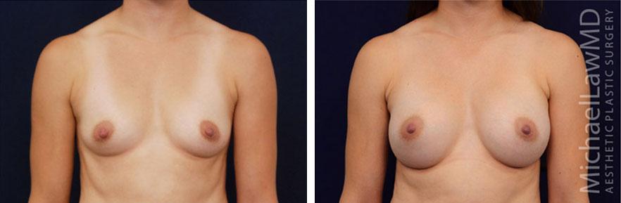 breastaug-73f