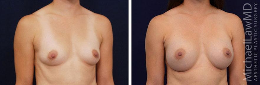 breastaug-73o