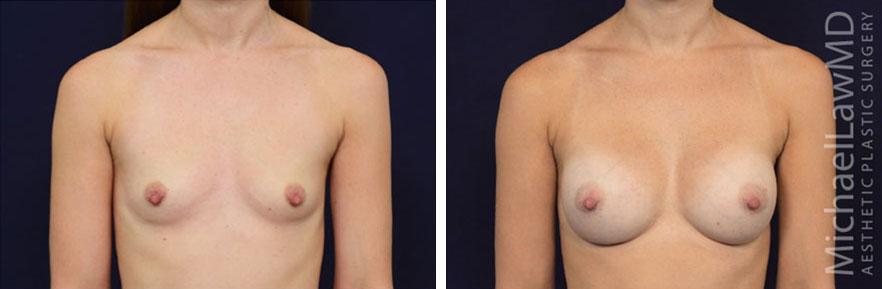 breastaug-74f