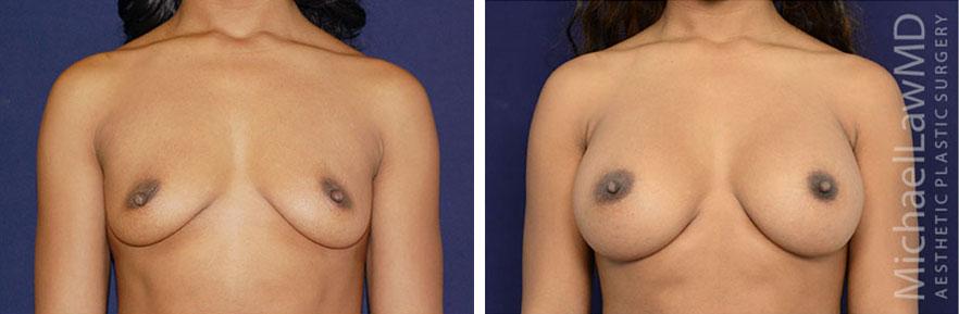 breastaug-75f