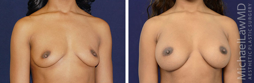 breastaug-75o