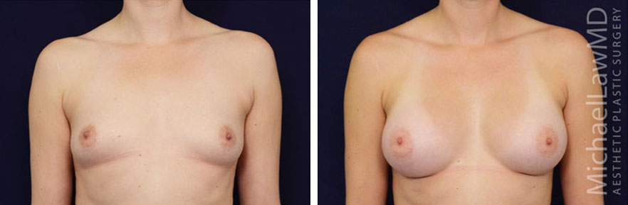 breastaug-76f