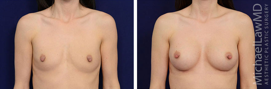 breastaug-77f