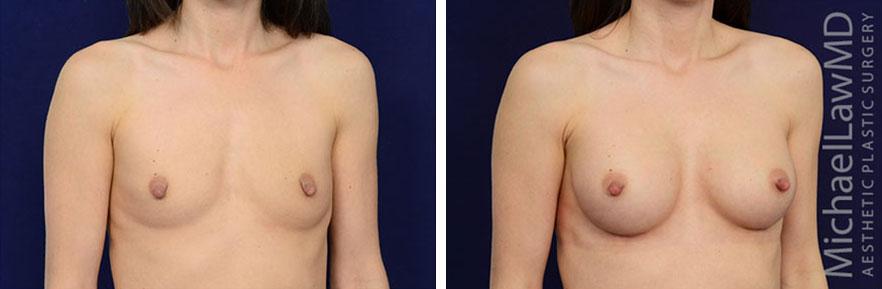 breastaug-77o