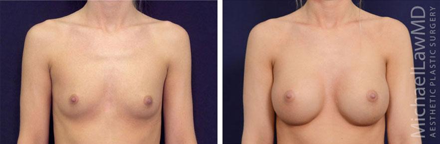 breastaug-81f