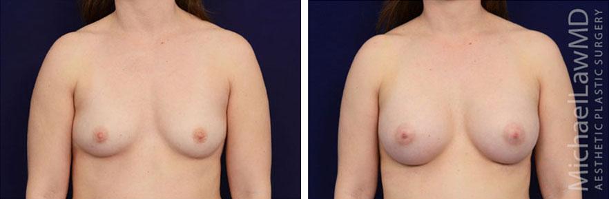 breastaug-82f