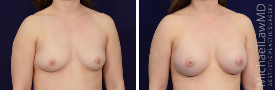 breastaug-82o