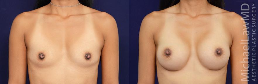 breastaug-83f