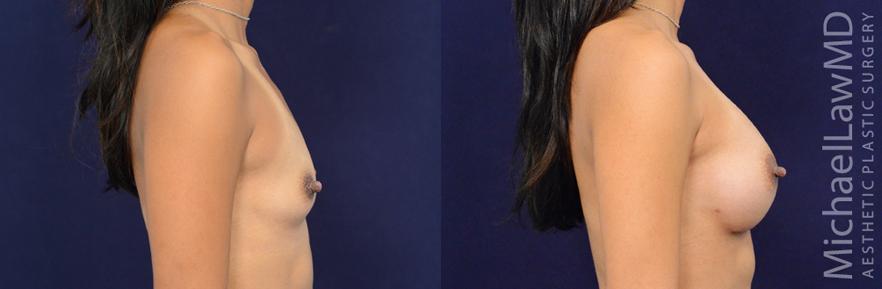 breastaug-83s