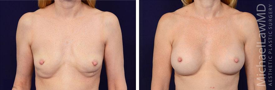 breastaug-85f