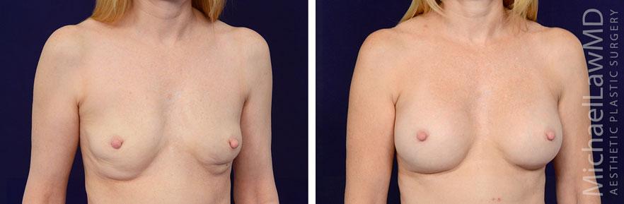 breastaug-85o