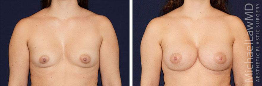 breastaug-86f
