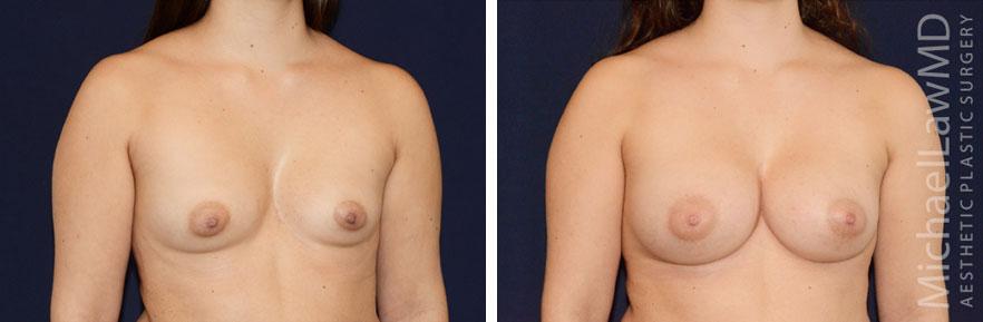 breastaug-86o