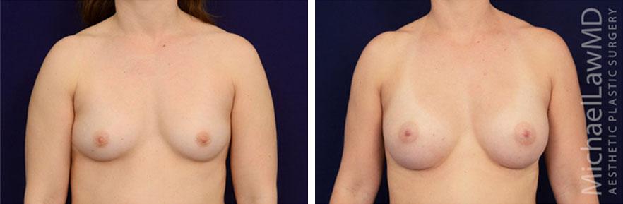 breastaug-91f