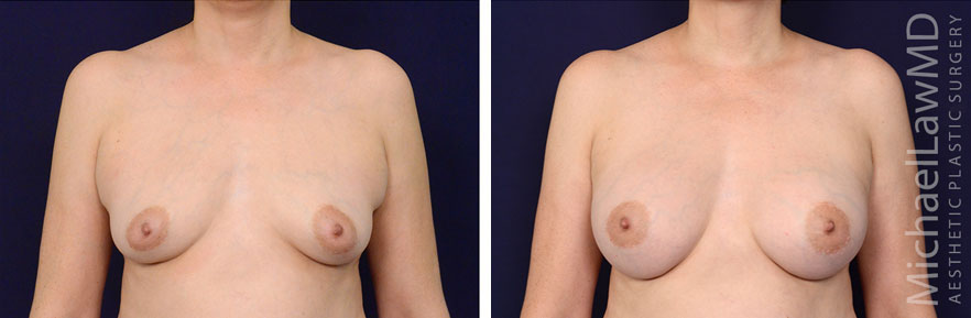 breastaug-92f