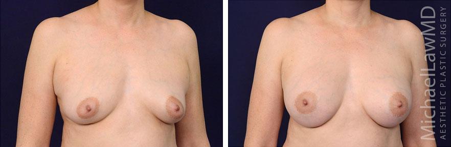 breastaug-92o