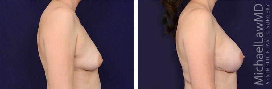 breastaug-92s