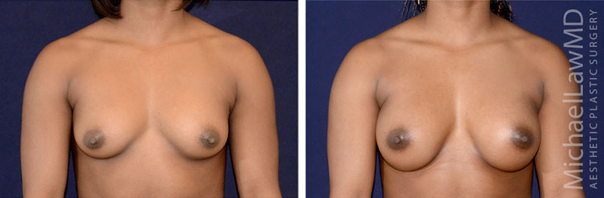 breastaug-93f