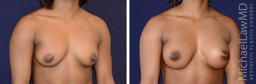 breastaug-93o