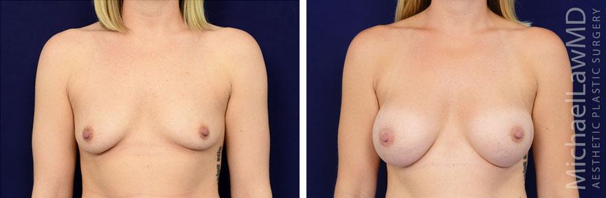 breastaug-94f