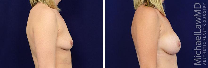 breastaug-94s