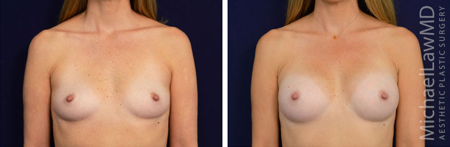breastaug-97f