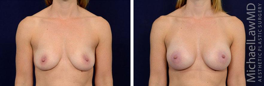 breastaug-98f