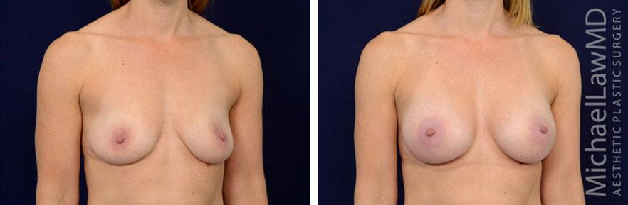 breastaug-98o