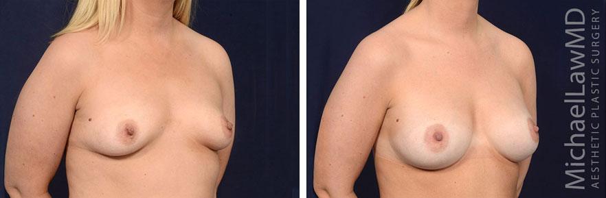 breastaug137-o