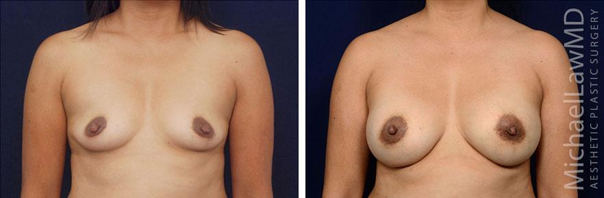 breastaug139-f