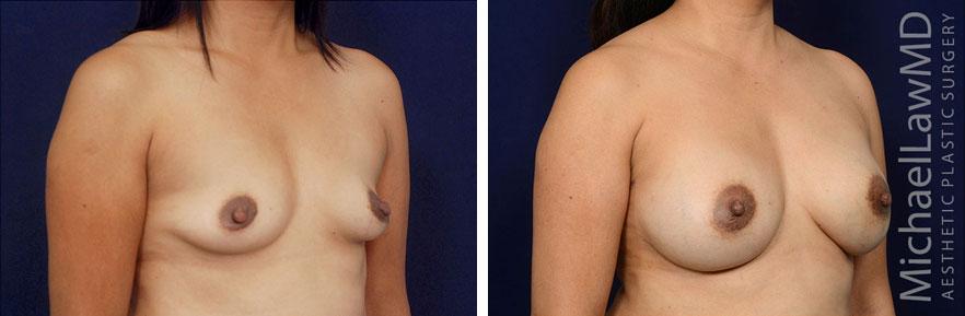 breastaug139-o