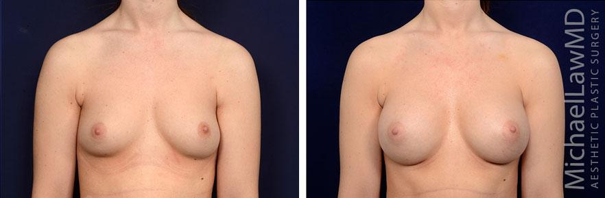 breastaug141-f