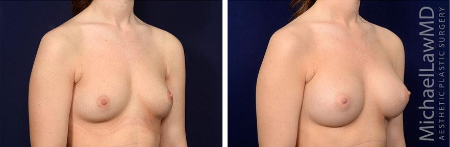 breastaug141-o