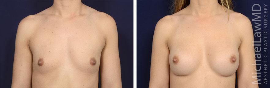 breastaug142-f